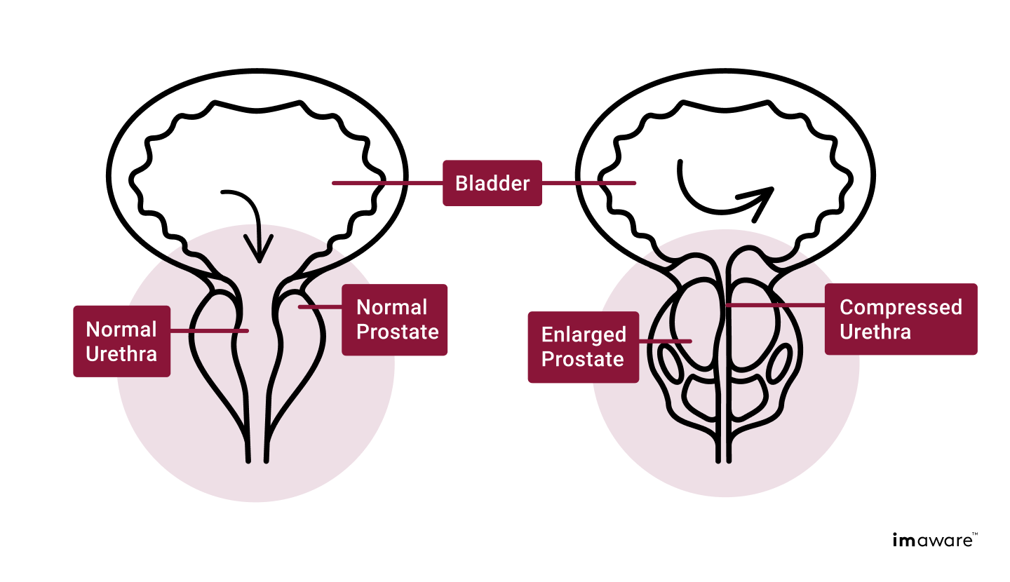 A side by side comparison of a bladder & prostate. One with an enlarged prostate compressing the urethra, the other with a normal prostate.