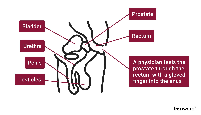Prostatitis só tömörítés mi a prosztatagyulladás és annak jelei