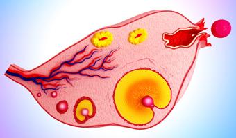 Hadassah and Hebrew University Discover Genetic Mutation that Prevents Ovary Development