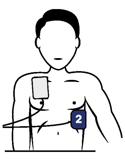 Positionnement des électrodes