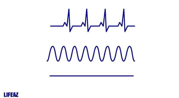 différents signaux électriques cardiaques