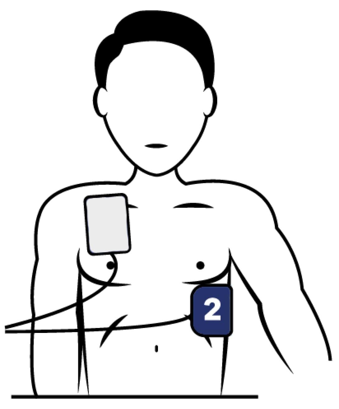 Placement des électrodes sur le torse de la victime