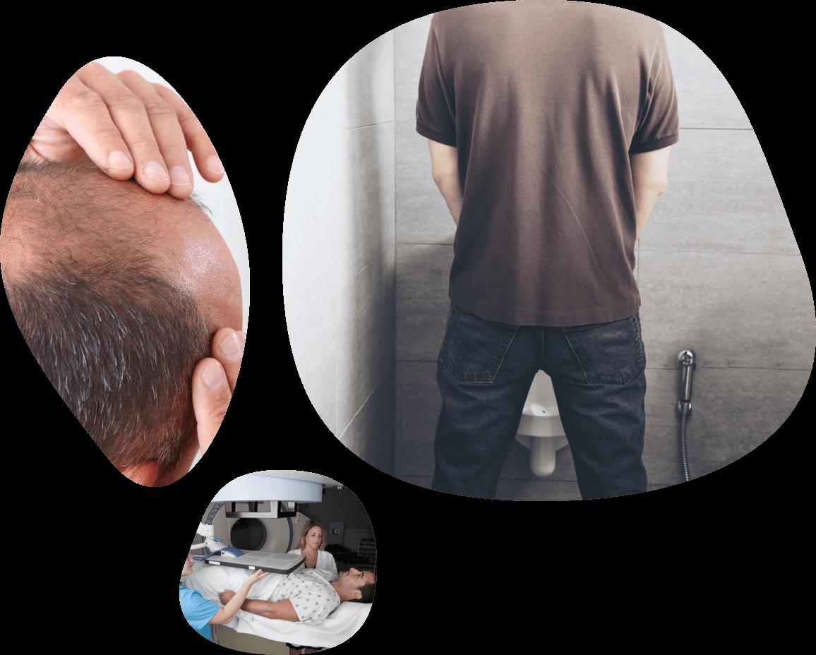 Photo grid representing men's health therapeutic area (balding scalp, man using urinal, etc.).