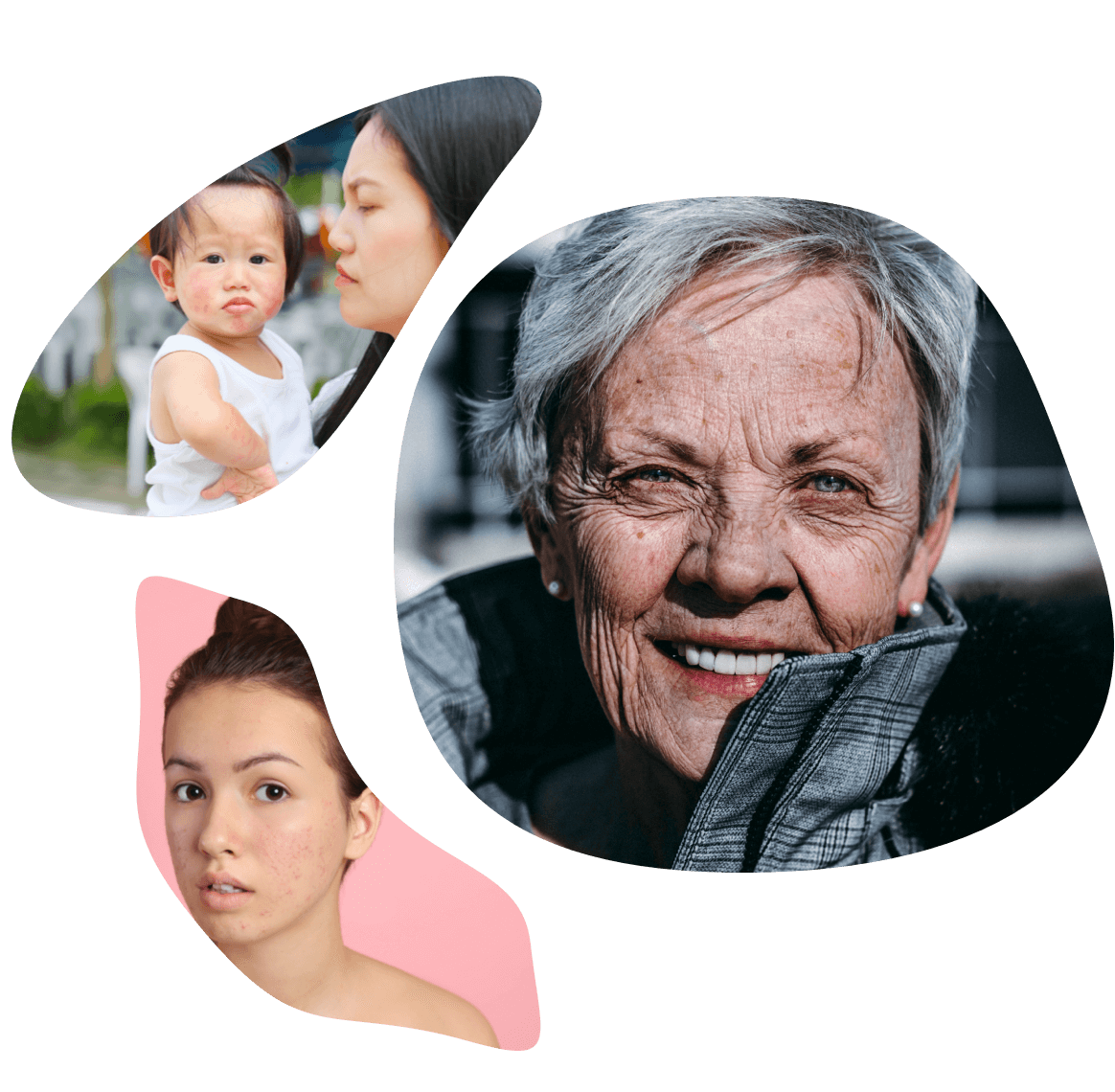 Photo grid representing dermatology therapeutic area (baby with dry skin on face, woman with acne on face, etc.).