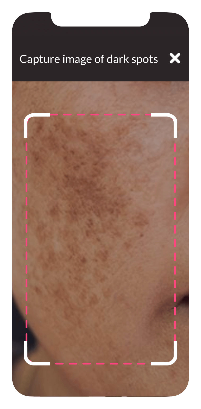 Capturing an image of dark spots on face through the ObvioHealth app.