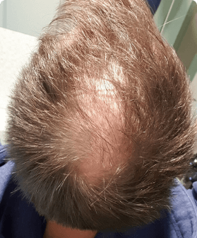 2 months of hair regrowth