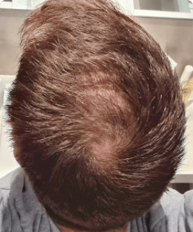 10 months of hair regrowth with Pilot