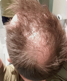 A Pilot customer before receiving hair treatment