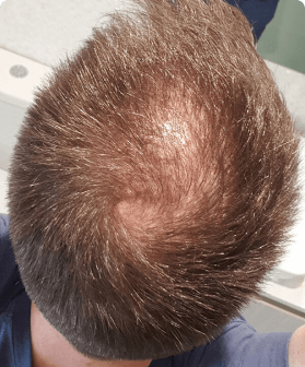 4 months of hair regrowth with Pilot