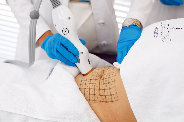 Thermage for Body