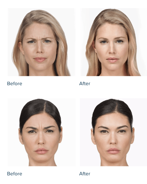 Before and after images of BOTOX treatment