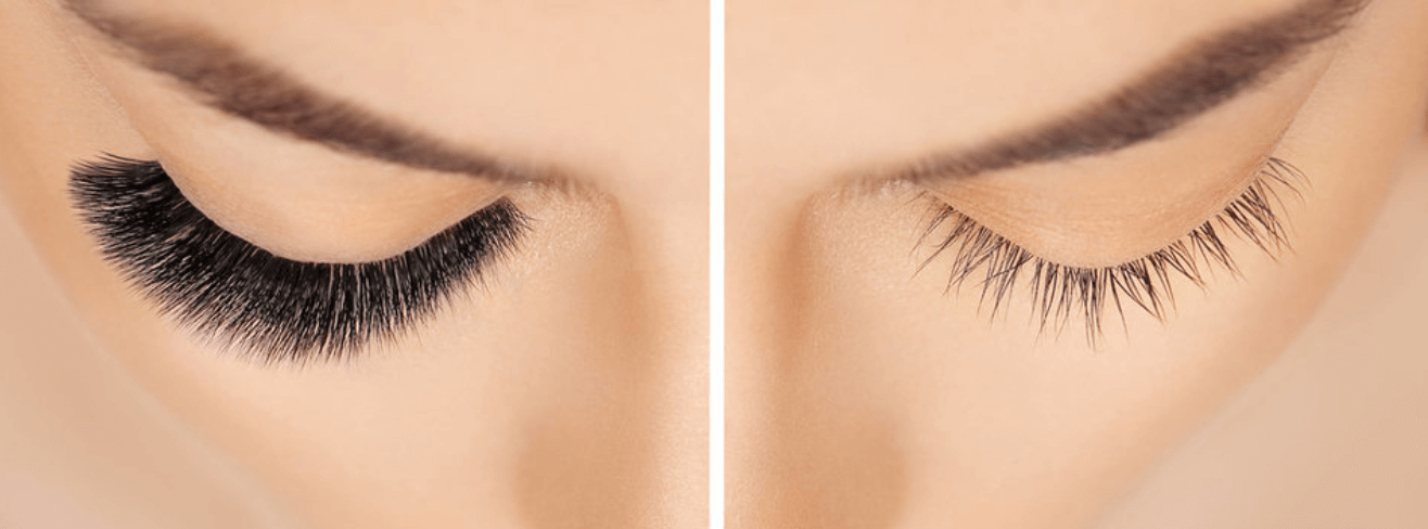 Before and after showing growth of eyelashes with Latisse