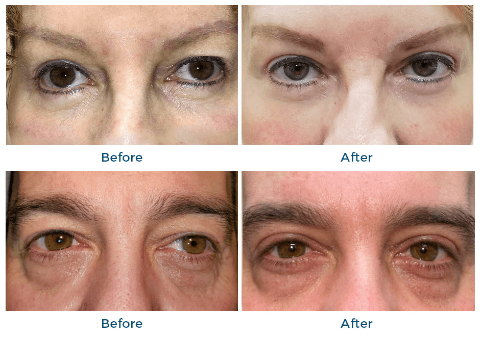 Before and after eyelid rejuvenation image of woman