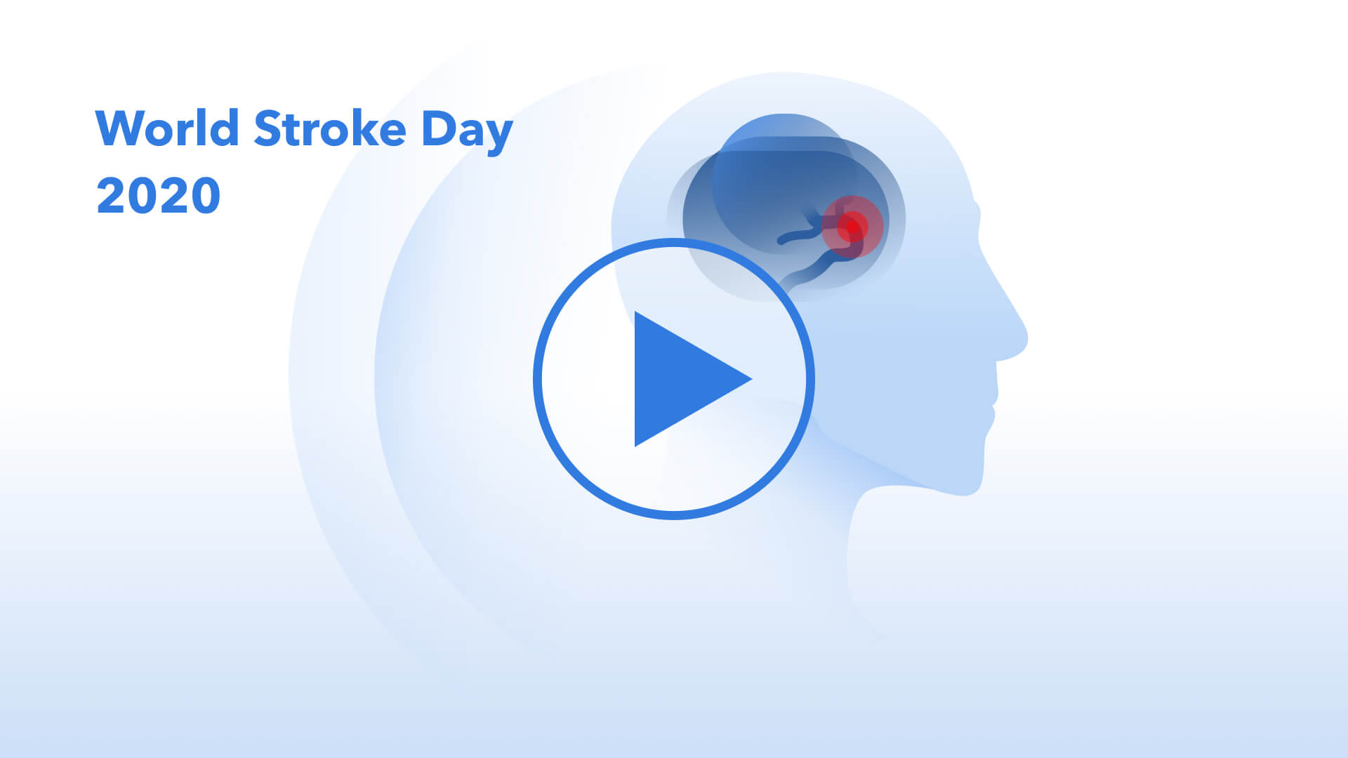 Learn More About Stroke Symptoms