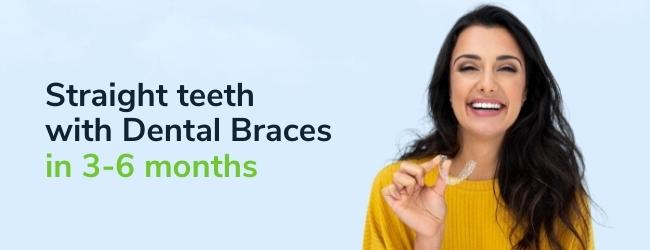 Straight teeth with Dental Braces
