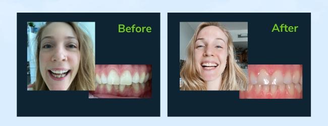 Bethan Lee smile transformation