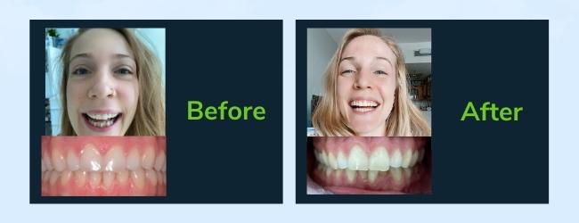 Dental Braces Results