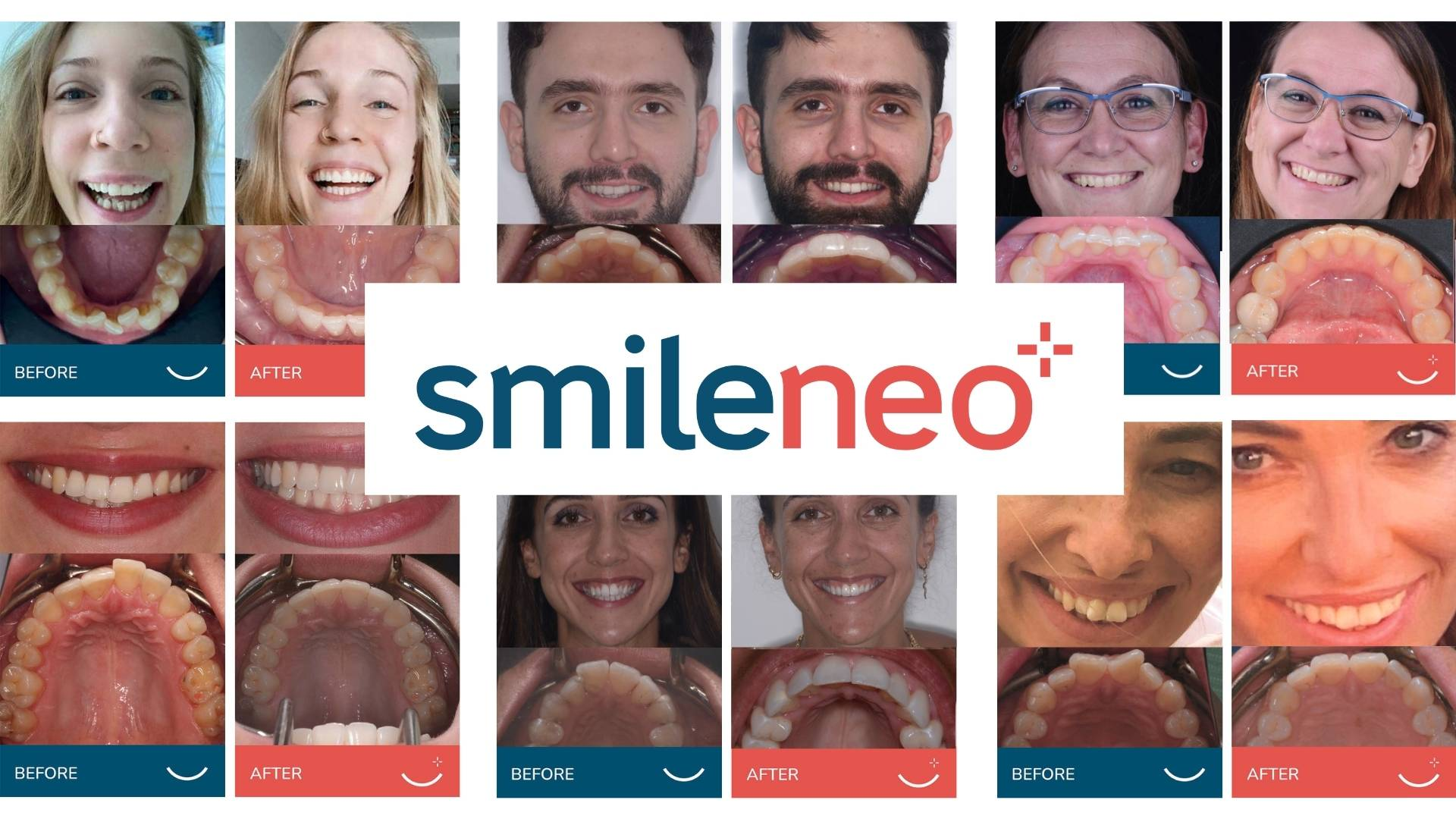Before and after smileneo patients