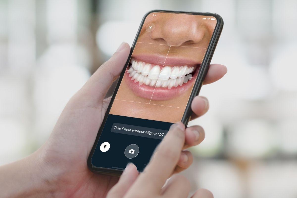 Smileneo Mobile App Tracking