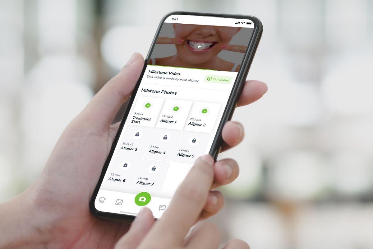 Smileneo Mobile App Chat