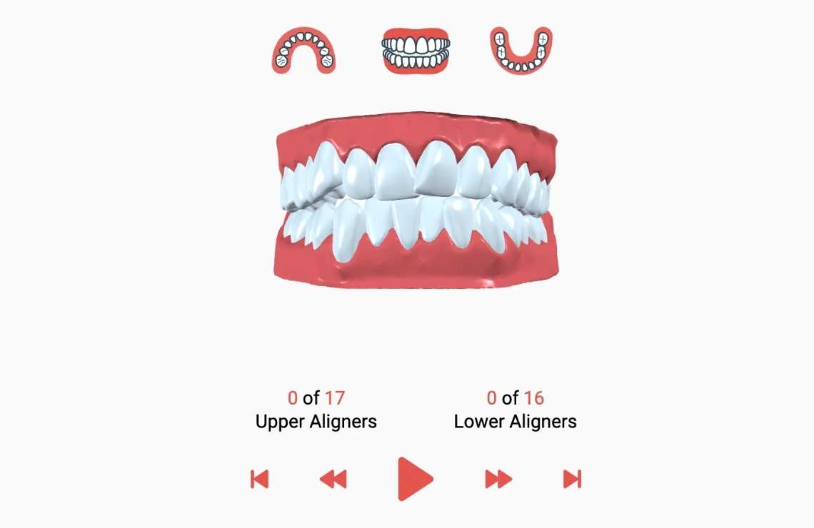 Smile Assessment for Invisible Braces