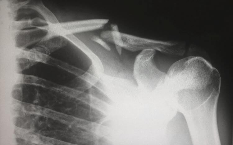 Image of a medical X-Ray of a broken collar bone.