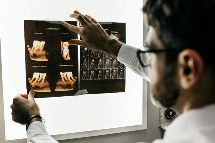 Image of a doctor analyzing X-ray scans from a broken bone.