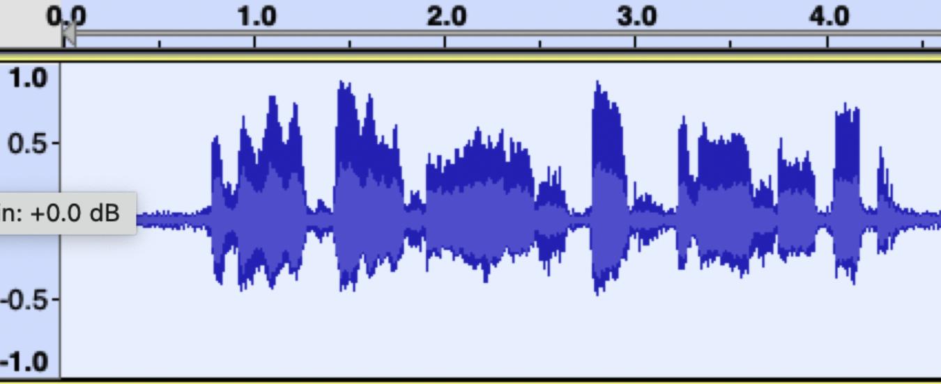Heart Sound Waveform