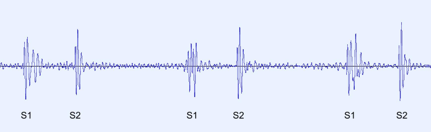 Phonocardiogram (PCG)