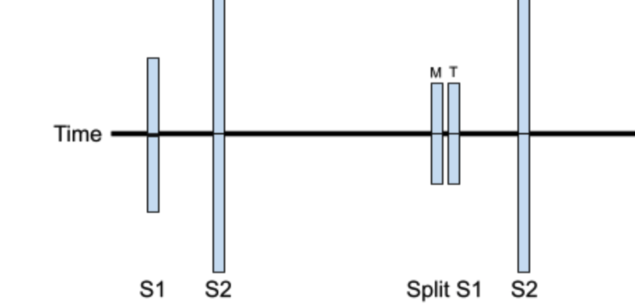 Upper panel - A cartoon comparing normal heart sounds (S1/S2) to a split S1 (M = mitral, T = tricuspid).