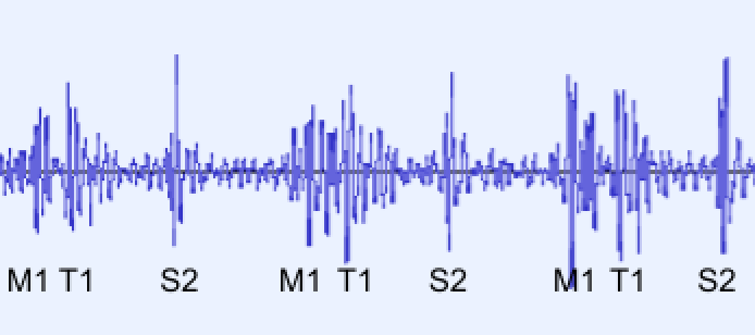 Lower Panel: A PCG showing the first heart sound (S1) splitting into separate mitral (M1) and tricuspid (T1) sounds. The second heart sound (S2) is not split.