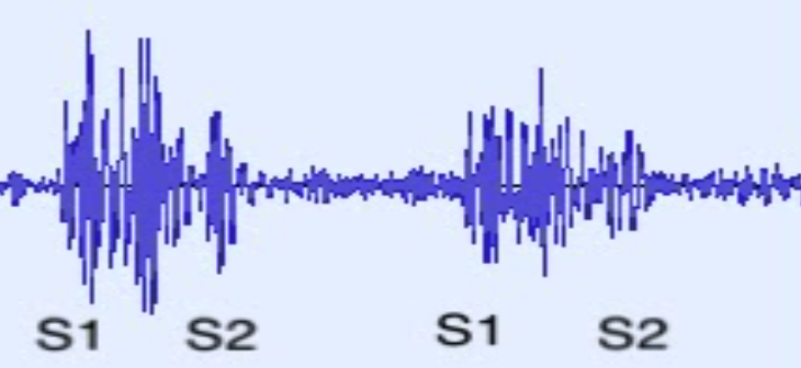"""Lower Panel: A PCG showing a continuous sound signal between S1 and S2. The reader is under the impression that the murmur sound increases and then decreases (""""crescendo-decrescendo""""), which suggests a murmur consistent with aortic stenosis."""