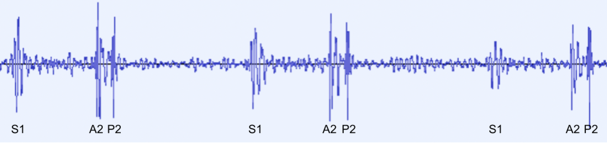 Lower Panel: A PCG showing the second heart sound (S2) splitting into separate aortic (A2) and pulmonic (P2) sounds. The first heart sound (S1) is not split.