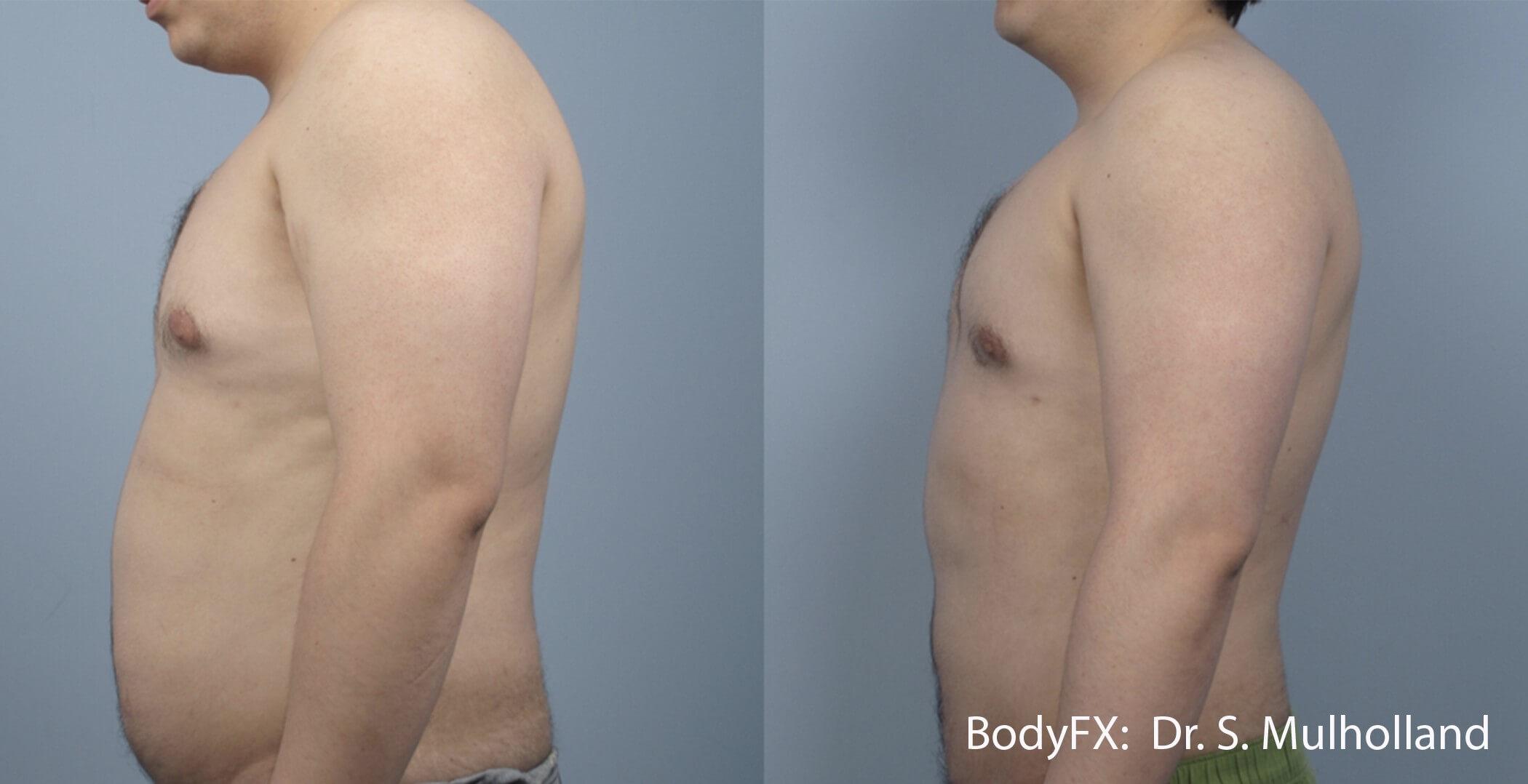 BodyFX Results 3 Image