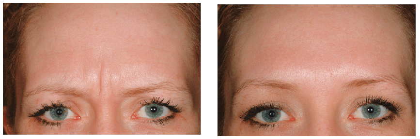 Dysport Before-After Client Image