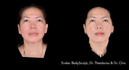 evoke-facesculpt1