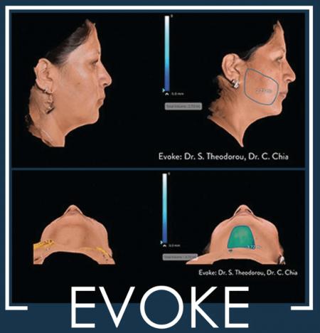evoke-firm-tighten-remove-fat