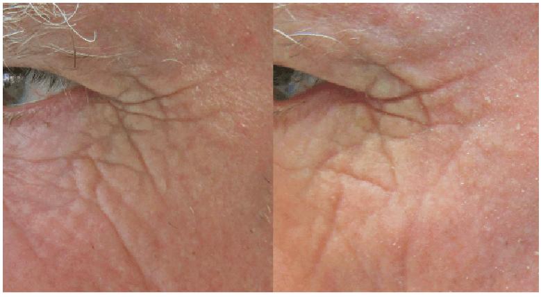 Fractora Results Image
