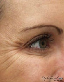 Hydrafacial female eyes before