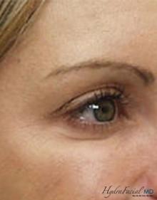 Hydrafacial female eyes after