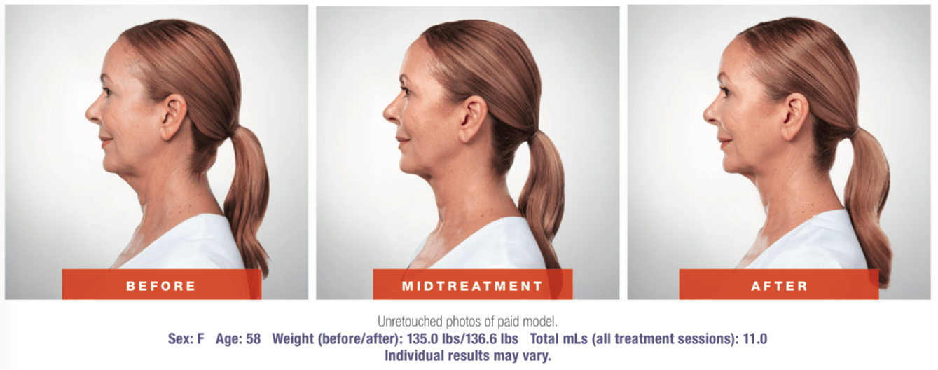 Kybella-Before-and-After-Chin