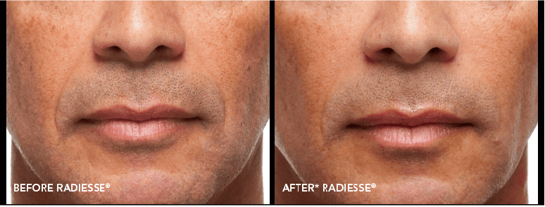 Radiesse Before-After Client Image