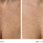 A lift without the knife ultherapy