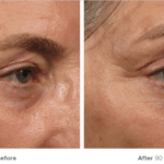Non surgical face lift ultherapy