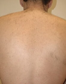 Diolaze Results Female Back After
