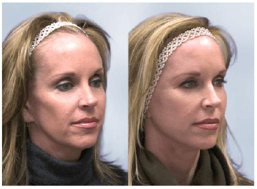 Sculptra Before-After Client Image