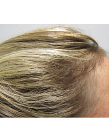 Viviscal Hair Growth After - Results