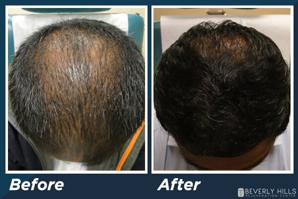 Low Level Laser Therapy Hair Loss B&A 4