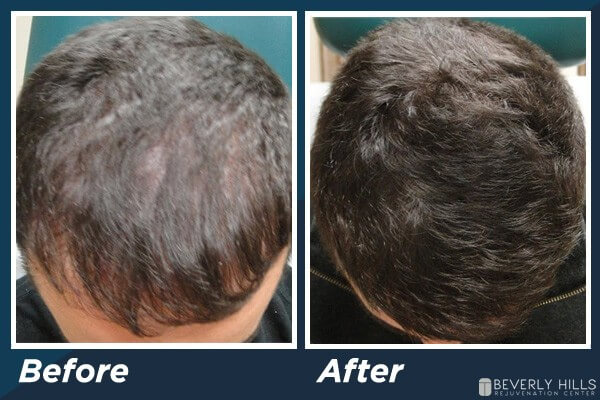 Low Level Laser Therapy Hair Loss B&A 3