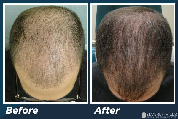 Low Level Laser Therapy Hair Loss B&A 1